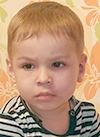 Кирилл Петряков, 3 года, мальформация кровеносных сосудов лица, требуется лечение. 22299 руб.