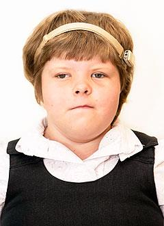 Диляра Тухватуллина, 9 лет, двусторонняя кондуктивная тугоухость 3–4 степени, аномалия развития ушных раковин, требуются слуховые аппараты костной проводимости. 822360 руб.