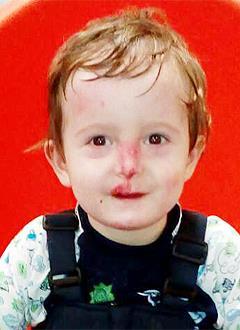 Исмоил Косимов, 2 года, врожденный буллезный эпидермолиз, требуются лекарства и перевязочные средства на полгода. 1214400 руб.