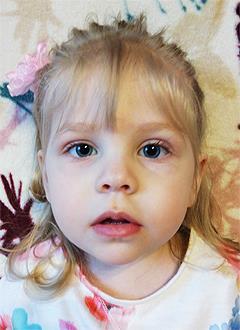 Лиза Смирнова, 2 года, деформация правой кисти после ампутации пальцев, требуется операция. 241756 руб.