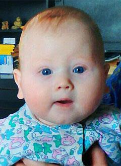 Рома Иванов, 6 месяцев, врожденная двусторонняя косолапость, требуется лечение по методу Понсети. 119350 руб.