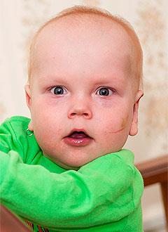 Даня Бугаков, полтора года, двусторонняя тугоухость 4-й степени, требуются слуховые аппараты. 186523 руб.