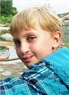 Егор Морозов, 10 лет, послеоперационная рубцовая деформация губы, носа, деформация челюсти, требуется ортодонтическое лечение. 180000 руб.