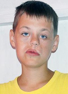 Дима Быков, 16 лет, патология развития челюстно-лицевой зоны лица, требуется ортодонтическое и логопедическое лечение в стационаре. 386000 руб.