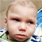 Денис Горбачев, симптоматическая эпилепсия, задержка развития, требуется лечение, 199430 руб.