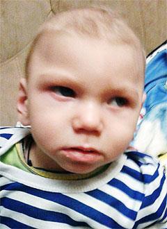 Денис Горбачев, 2 года, симптоматическая эпилепсия, задержка развития, требуется лечение. 199430 руб.