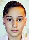 Давыд Арзамасов, 14 лет, сахарный диабет 1-го типа, требуются расходные материалы к инсулиновой помпе. 154298 руб.
