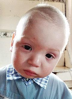 Аяз Зарипов, 1 год, врожденная левосторонняя косолапость, требуется лечение по методу Понсети. 119350 руб.