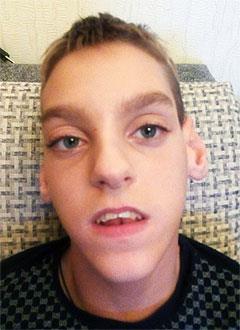 Максим Юденков, 14 лет, детский церебральный паралич, симптоматическая эпилепсия, требуется лечение. 199430 руб.