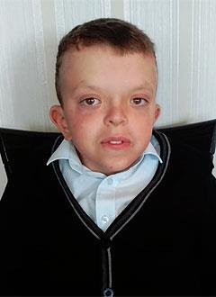 Паша Смаковский, 10 лет, гипертрофическая кардиомиопатия (поражение сердечной мышцы), стеноз легочной артерии, атриовентрикулярная блокада 3-й степени, требуется замена электрокардиостимулятора. 612396 руб.