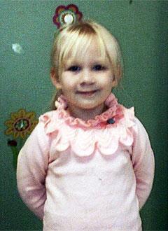 Кира Жалнина, 5 лет, рубцовая деформация губы и носа, расщелина альвеолярного отростка, недоразвитие верхней челюсти, требуется лечение. 366000 руб.