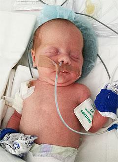Дарина Тумандеева, 3 недели, сложный врожденный порок сердца, спасет операция. 214016 руб.