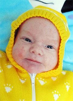 Сеня Валов, 2 месяца, врожденная правосторонняя косолапость, требуется лечение по методу Понсети. 119350 руб.