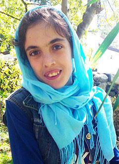 Тамара Тарба, 17 лет, кифосколиоз 4-й степени, спасет операция. 787860 руб.