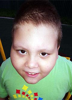 Даня Половов, 7 лет, задержка психоречевого развития, требуется курсовое лечение. 199200 руб.