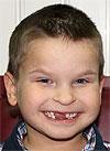 Коля Якимов, 6 лет, врожденная двусторонняя косолапость, рецидив, требуется лечение. 206150 руб.