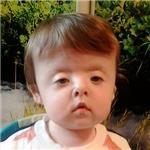 Никита Лапшин, синдром Сетре – Чотзена, деформация черепа, спасет операция, требуется подготовка к ней и компрессионно-дистракционные аппараты, 690000 руб.