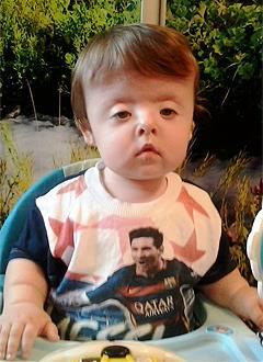 Никита Лапшин, 1 год, синдром Сетре – Чотзена, деформация черепа, спасет операция, требуется подготовка к ней и компрессионно-дистракционные аппараты. 690000 руб.