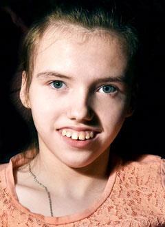 Вика Демина, 13 лет, спастический тетрапарез, детский церебральный паралич, эпилепсия, сколиоз 3-й степени, кифоз, деформация бедренной кости, требуется инвалидная коляска. 240436 руб.