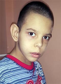 Андрей Вачуга, 13 лет, туберозный склероз, симптоматическая мультифокальная эпилепсия, спасет лекарство. 155041 руб.