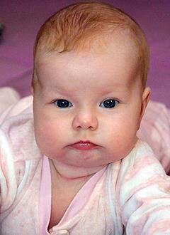 Катя Самодурова, 5 месяцев, деформация черепа, требуется лечение специальными шлемами. 180000 руб.