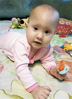 Маша Кокина, 1 год, синдром Опица (нарушение метаболизма), деформация черепа, спасет операция, требуется подготовка к ней и саморассасывающиеся пластины. 690000 руб.